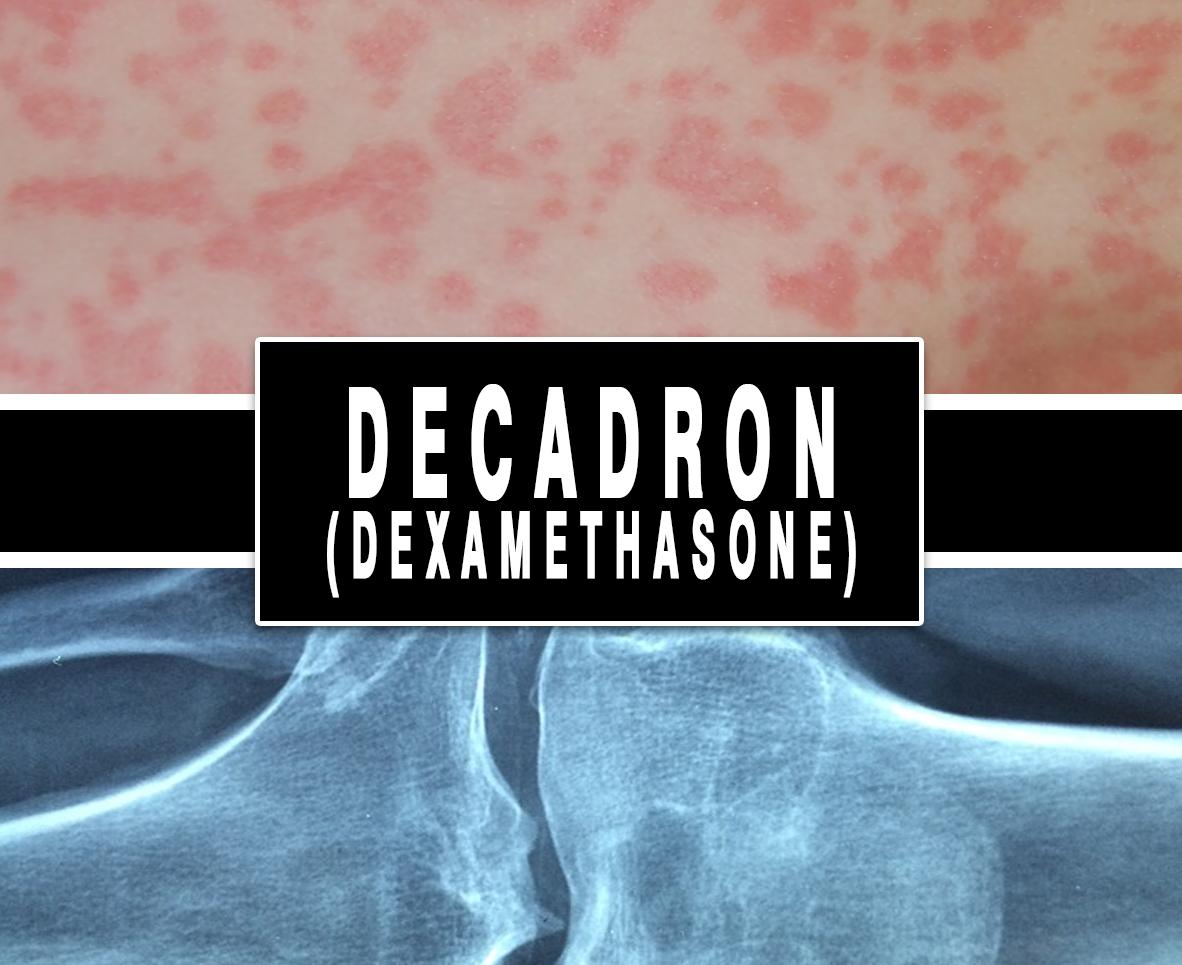 Decadron (Dexamethasone)
