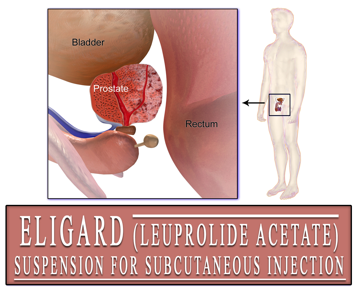 Eligard (Leuprolide Acetate) Suspension for Subcutaneous Injection