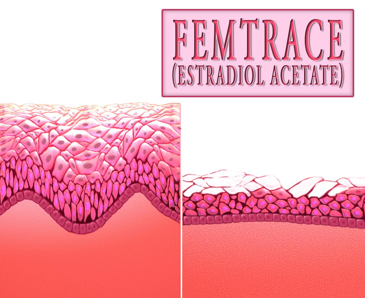 Femtrace (Estradiol Acetate)