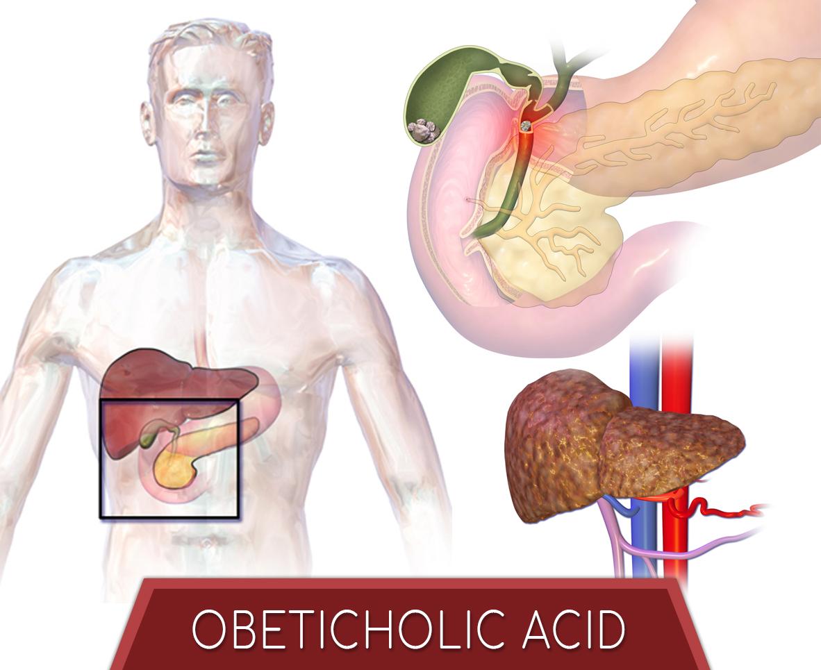 Obeticholic Acid
