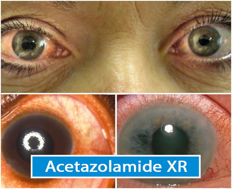 Acetazolamide XR
